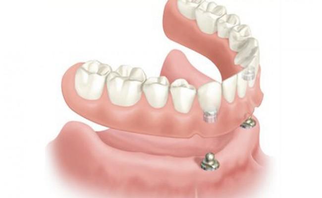 Fotos-de-protesis-dentales-removibles1-650x400